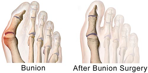Bunion Surgery NYC | Minimally Invasive Bunion Removal in New York City