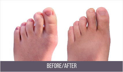 hammer toe surgery before and after