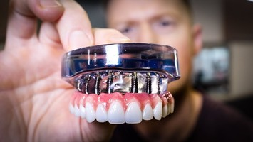 Everything You Should Know About Full Mouth Dental Implants